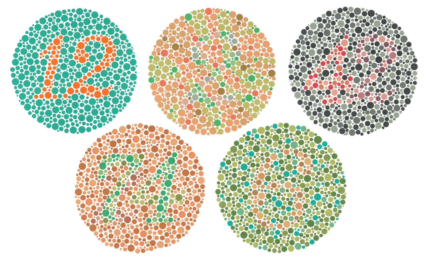 color blindness Diagnosing color blindness eye doctors can test for color blindness during an eye examination one test is a picture made up of different colored dots.