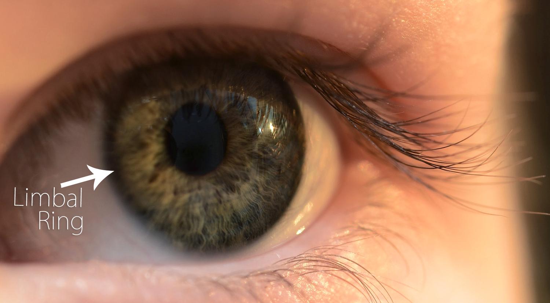 Black Eyes Limbal Ring