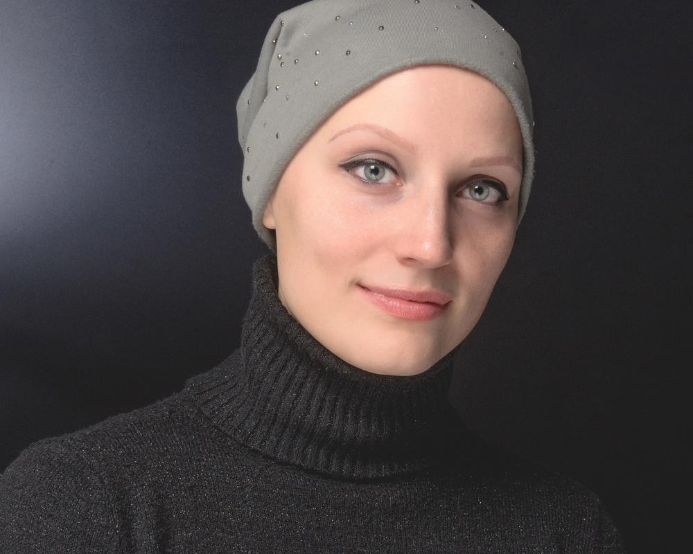 Alopecia areata by Ernst Hubert Schwendinger
