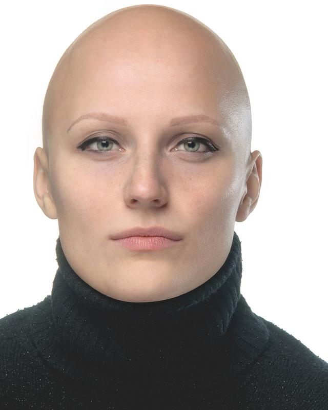 wonderful Lisa - Alopecia  by Ernst Hubert Schwendinger