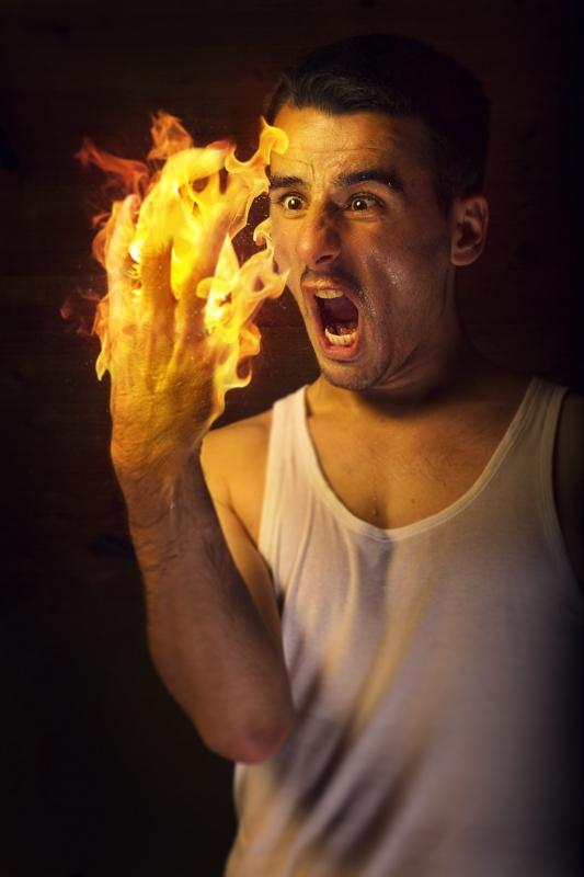 Burn hand by Dejan Milic