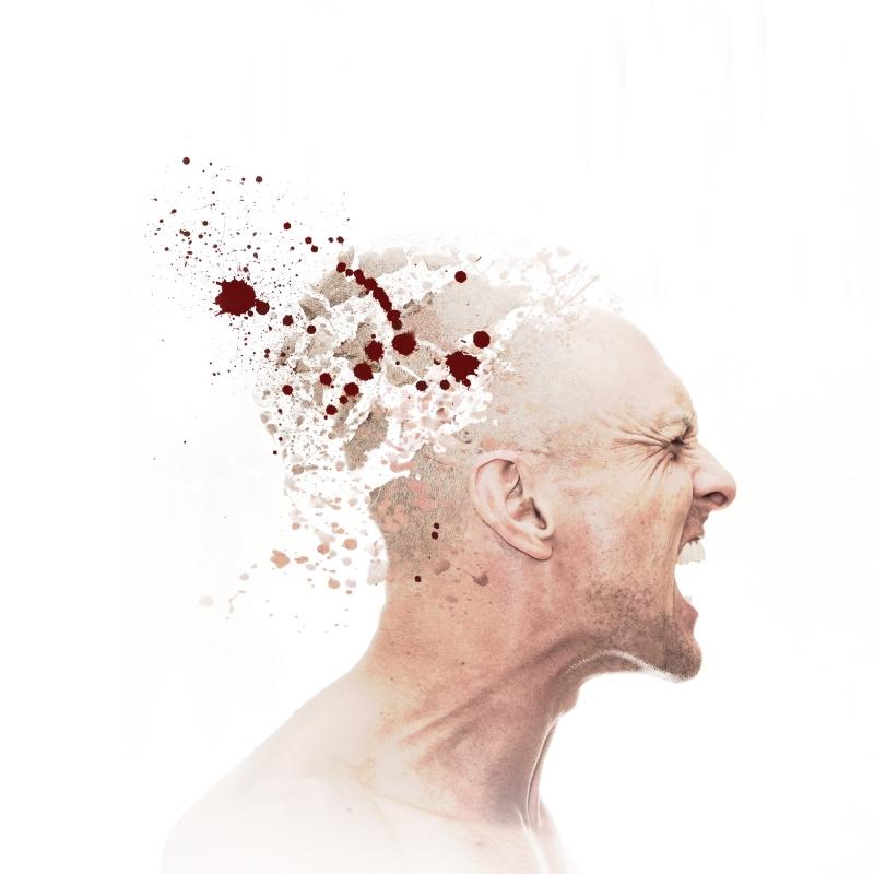 Headache by Kirk Marsh