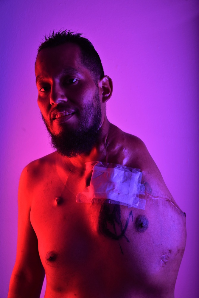 #SarcomaAwareness by Eduardo Perme
