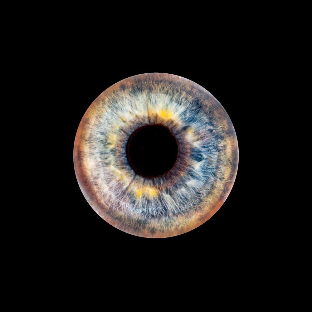 Eye by Skyler Ewing