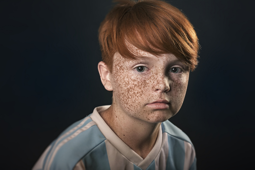 Freckles by Richard Johnson