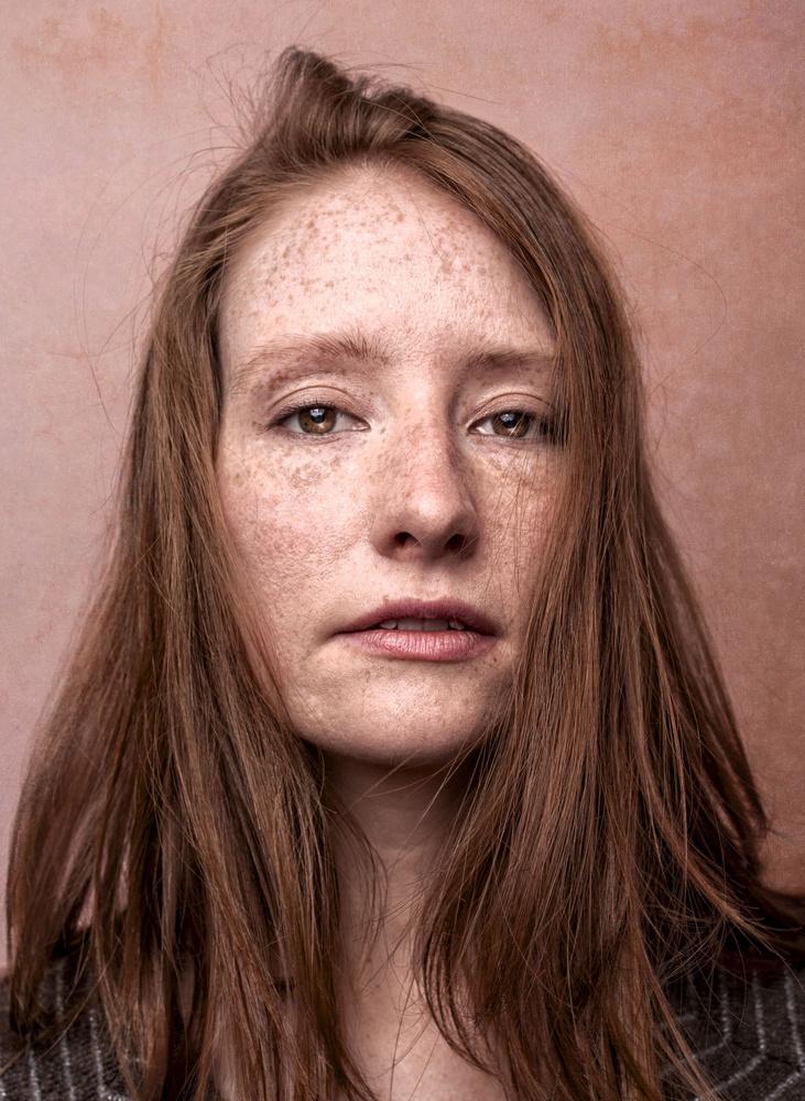 freckles by Ian Pettigrew