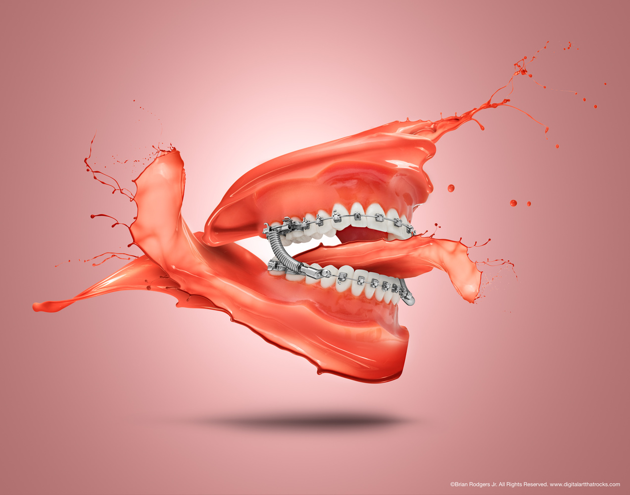 Orthodontic Splash by Brian Rodgers Jr.