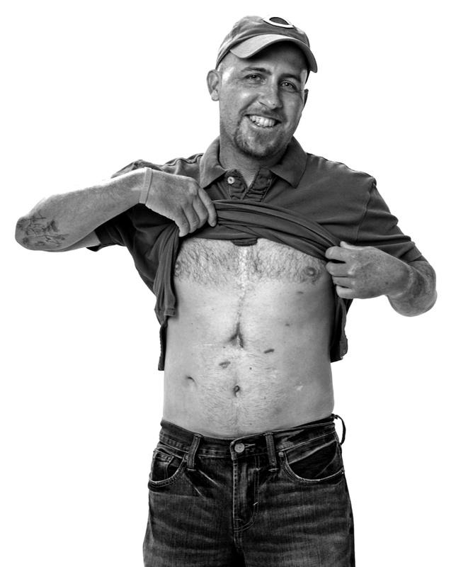 Heart Transplant Survivor by Will Fields