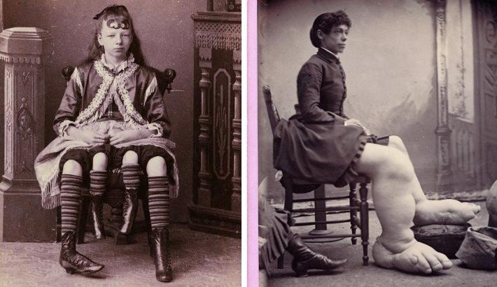 """Charles Eisenmann Photographs """"Freaks"""" In The 1870's"""