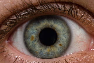 The Resolution of the Human Eye