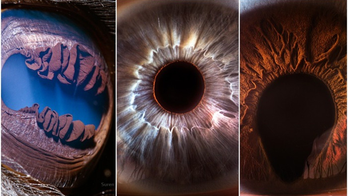 Suren Manvelyan: The Person Behind 'Your Beautiful Eyes' Extreme Macro Photography