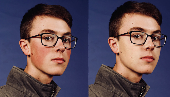 A One-Minute Tutorial on How to Quickly and Effectively Remove Red Skin in Photoshop