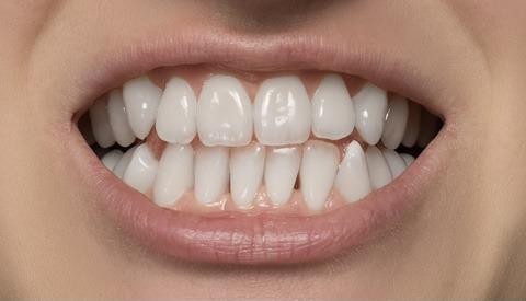 How to Whiten Teeth Using Photoshop
