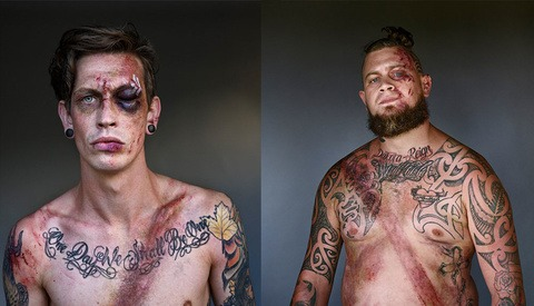 Car Crash Survivors Pose With Seatbelt Wounds for New Photography Series