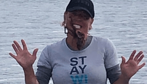 Woman Hospitalized After the Octopus She Put on Her Face for a Photo Contest Injected Her With Venom