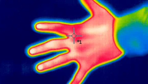 Thermal Camera at Tourist Attraction Spots Woman's Undiagnosed Breast Cancer