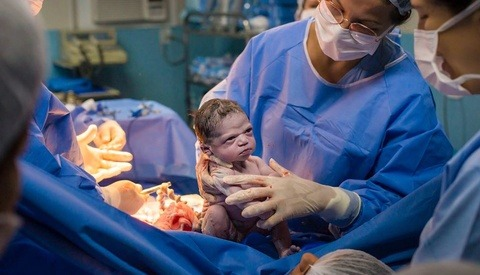 Photographer Captures Moment Newborn Baby Gives Doctors a 'Death Stare' as They Try to Make Her Cry