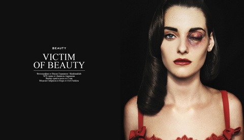"""Major Controversy Over """"Victims Of Beauty"""" Photo Series"""