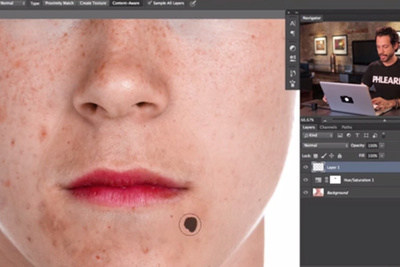 Phlearn Teaches Us How to Remove Acne in Photoshop