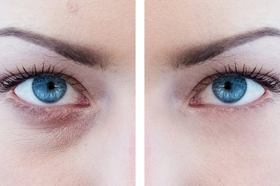 How to Reduce or Remove Eye Bags in Photoshop