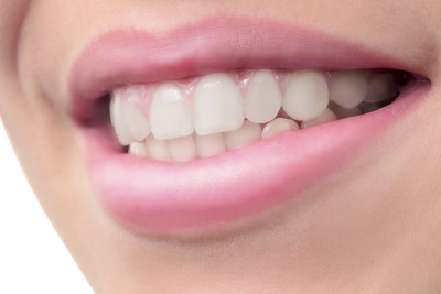 How to Remove Braces Using Photoshop