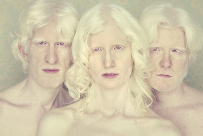 Compelling Complexion: Portraits of Albinism