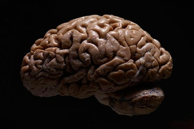 Photographing A Collection Of Human Brains
