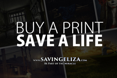 Saving Eliza: Buy Prints From Industry Leaders To Save a 4-Year Old