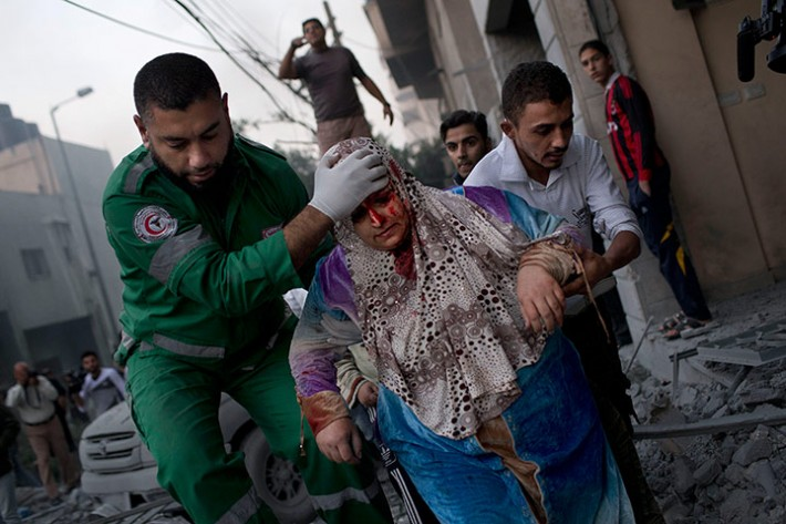 A Palestinian woman after being injured during an Israeli forces strike