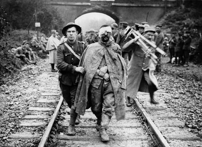 WW1 Photography Injured